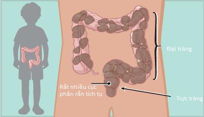 Cục phân rắn tích tụ nhiều trong đại tràng gây táo bón