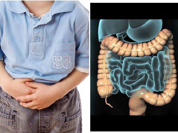 Đau bụng là triệu chứng điển hình của IBS